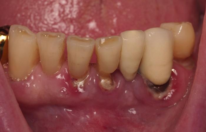 Воспаление окодо зуба