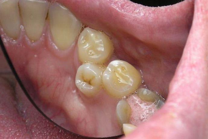 Дистопия зуба мудрости333,93