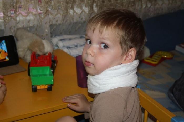 Миозит шеи у ребенка
