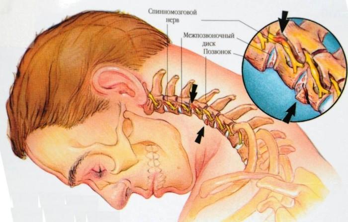 Патология позвоночника в шее