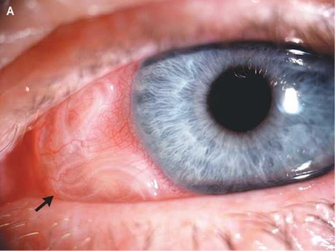 Абсцесс глаз