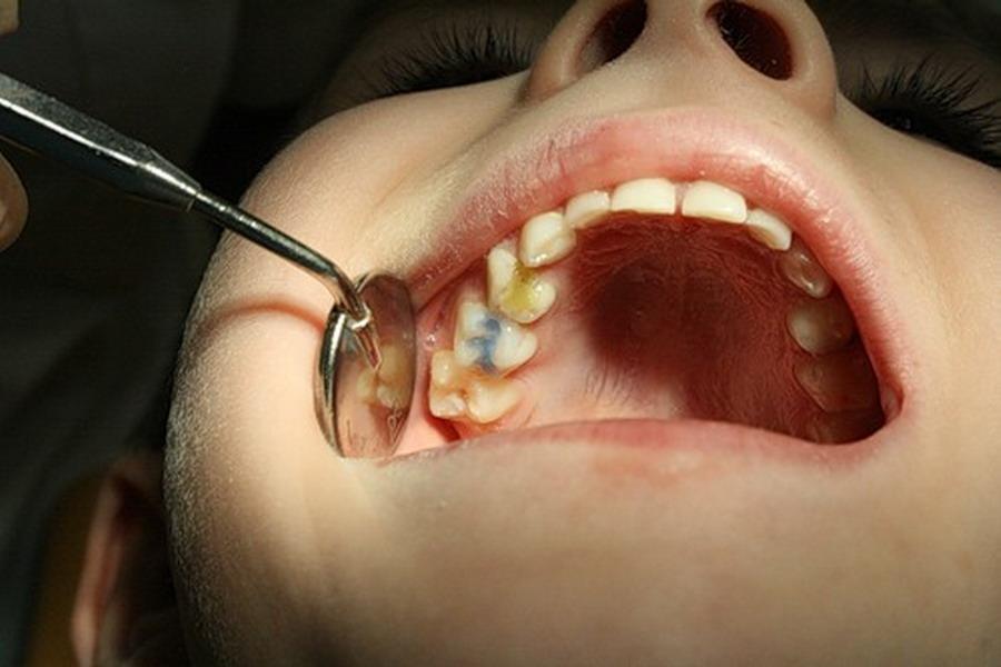 Боли в десне после удаления зуба мудрости