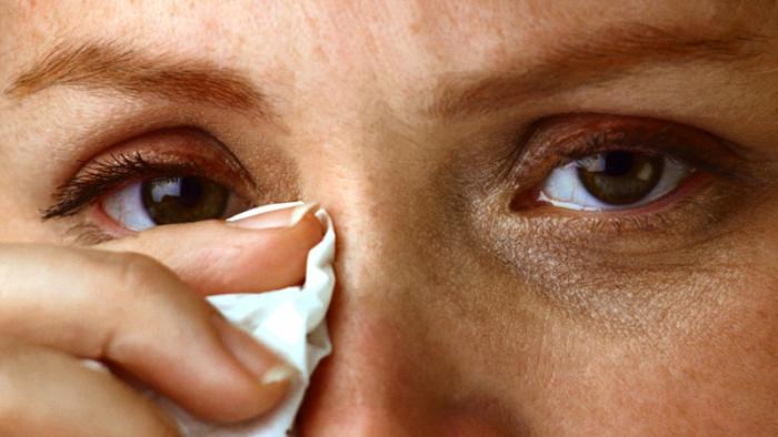 Покраснели и болят глаза
