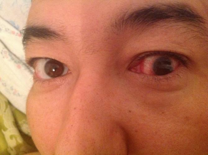 Глаз болит при надавливании: причины и лечение