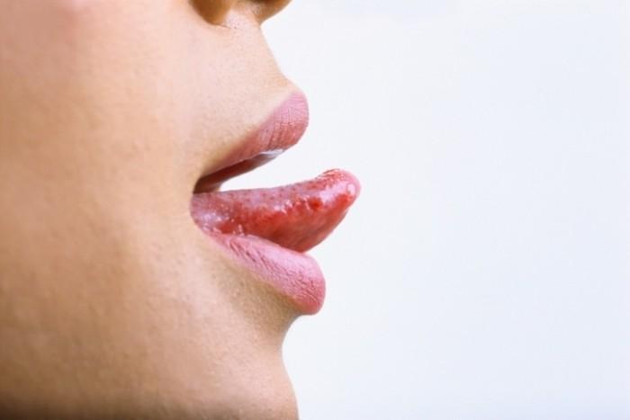 Травма кончика языка
