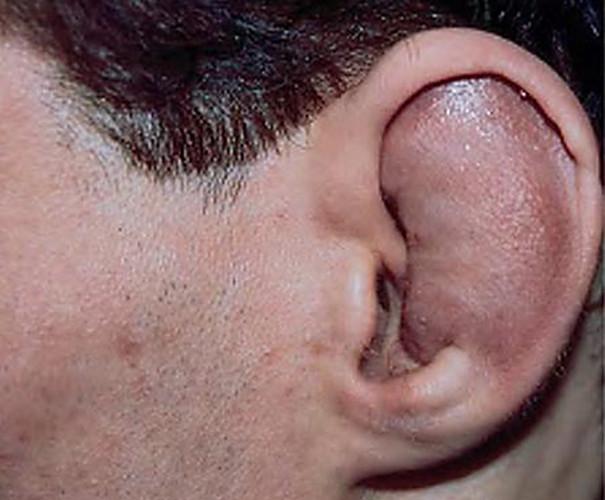 Травма ушной раковины