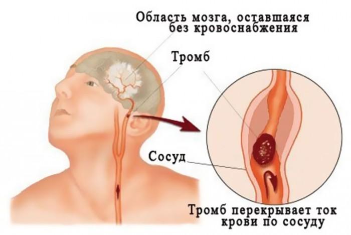 Нарушения кровообращения мозга