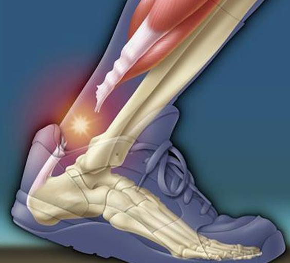 Почему болит задняя часть пятки при ходьбе что это может быть и как лечить
