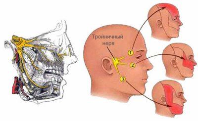 Радиочастотная абляция тройничного нерва