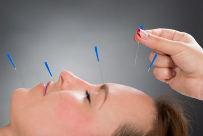 Невралгия тройничного нерва лечение