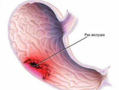 Рак желудка