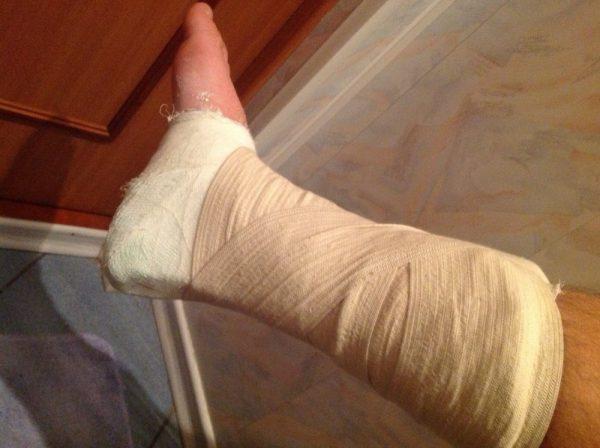 Онемение в ноге после операции на позвоночнике