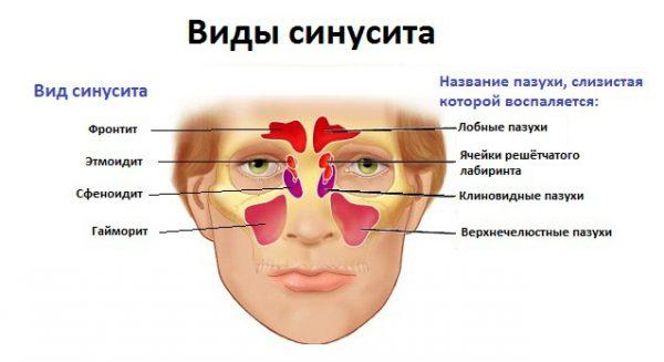 Болит голова при наклоне в области лба