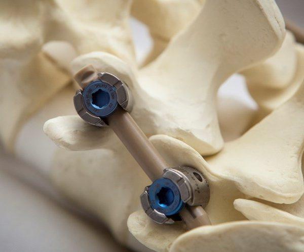 Головные боли из за защемления в шее