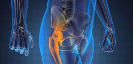 Почему болит бедро при ходьбе