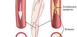 Болит нога от бедра до стопы