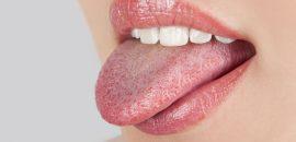 Почему язык болит и печет без особых внешних изменений
