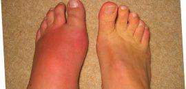 Почему могут болеть ноги