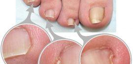 Боль в пальце ноги возле ногтя